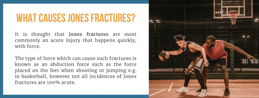 What is a Jones Fracture